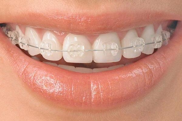 Nova ambulanta v dvorcu – Ortodontija